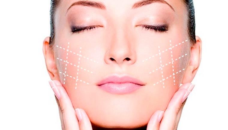 Tensores faciales o Bio estimuladores de colágeno